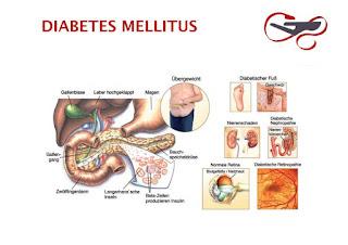 Langkah Menghindar Dari Penyakit Diabetes Melitus