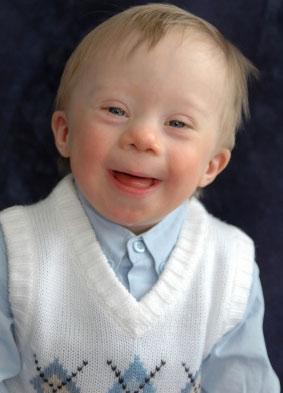 St John's Pro Life: The 12 -week Scan and Down's Syndrome  St John's P...