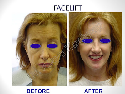 Plan an Affordable Cost for Facelift Surgery in India.