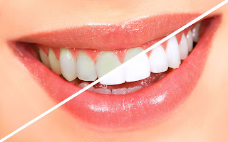 gambar gigi putih, gambar gigi kuning, cara memutihkan gigi kuning