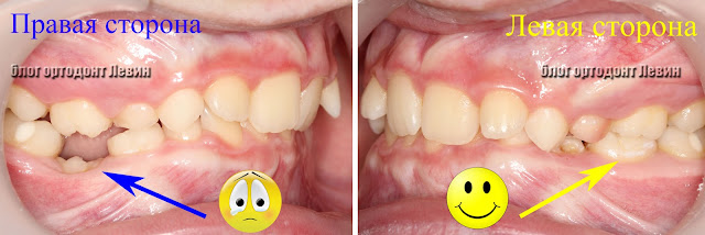 ретинированный молочный зуб