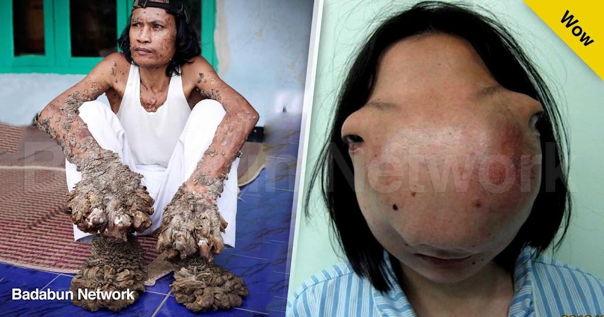 enfermedades deformidad infección salud incurable síndrome