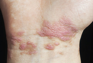 Picture of itchy red bumps on wrist caused by lichen planus.