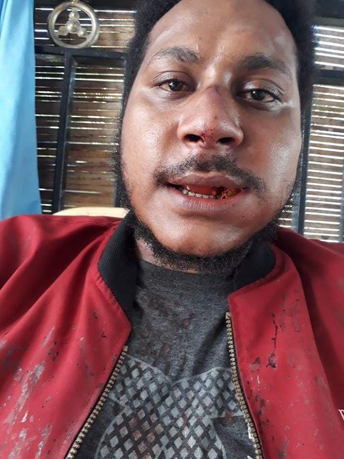 Aktivis Papua, Ketua SONAMAPPA Dikeroyok OTK