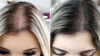 Causas e tratamento caseiro da queda de cabelo