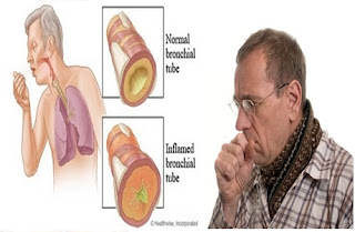 pengobatan penyakit bronkitis