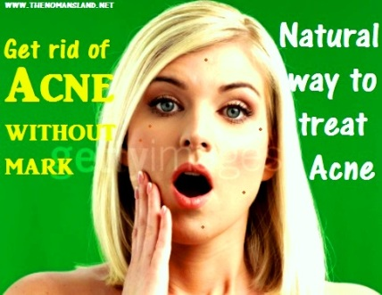 get rid of acne without mark