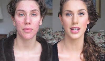 Masque au gingembre contre l'acné et les points noirs