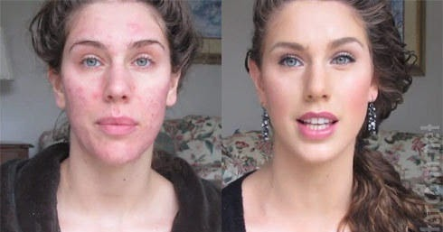 masque au gingembre contre l 39 acn et les points noirs. Black Bedroom Furniture Sets. Home Design Ideas