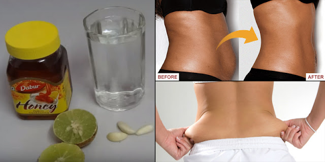It Destroys Cholesterol And Burns Fat, This Drink Is Stronger Than Cure - It Is Recommend Even From The Doctors!