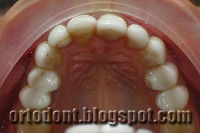 Окклюзионная (жевательная) поверхность. Форма зубов сделана не качественно
