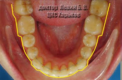 На фото зубной ряд после снятия брекетов