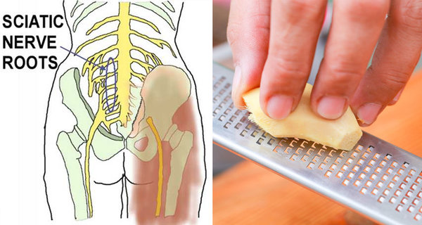 Treat Sciatica Pain Without Medicine (use herbs from your pantry instead)