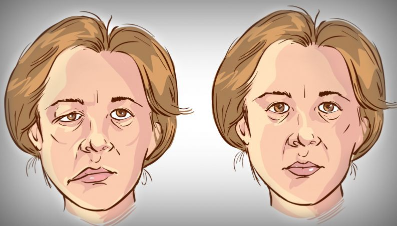 Bell's Palsy - Causes, Symptoms and Treatments