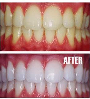 Obat Pemutih Gigi | Penghilang Bau Mulut | Obat Pemutih Gigi Di Jogja