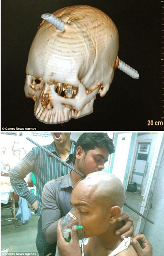 Builder's BRAIN is pierced by seven-foot long iron rod