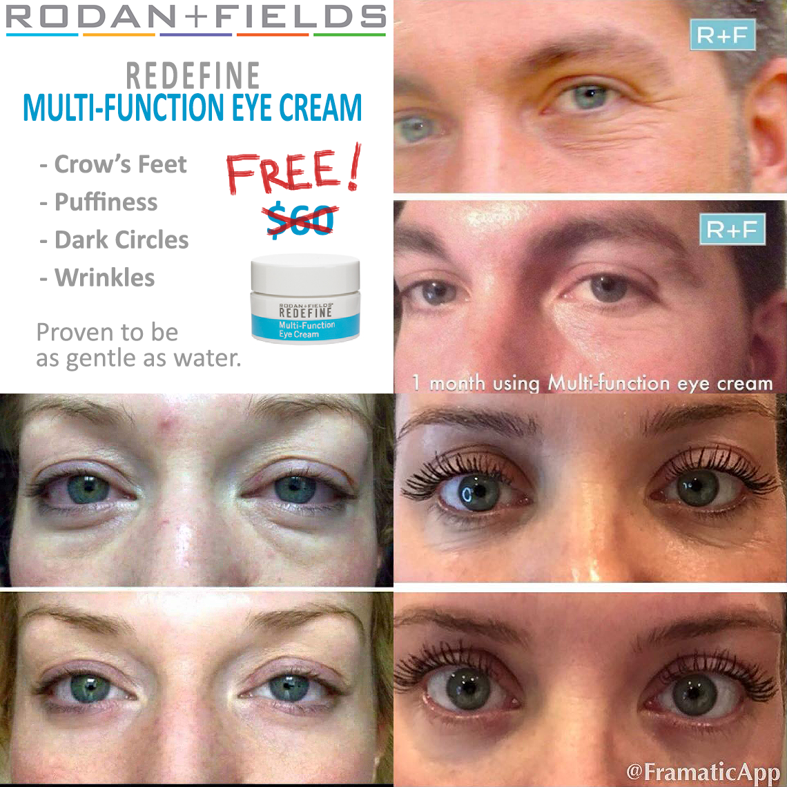 Rf Posts Redefine Multi Function Eye Cream