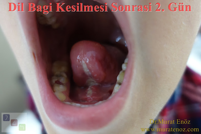 After the tongue tie release surgery - Mucosal white healing area under the tongue - White mucosal healing area after the lingual frenectomy