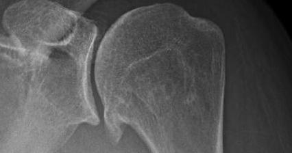 Pain 5 Months After Rotator Cuff Surgery