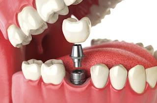 Làm cầu răng có đau không và có ảnh hưởng gì không? 1