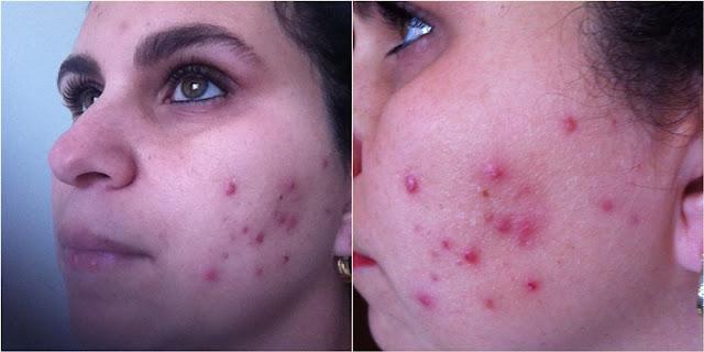 Resenha: Tratamento Contra Acne