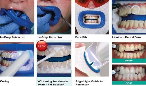 các vấn đề chưa biết khi tẩy trắng răng tại nha khoa -4