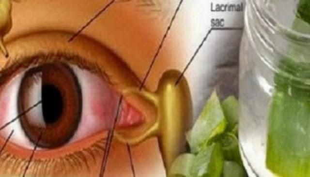 σπιτική συνταγή που βελτιώνει την όραση