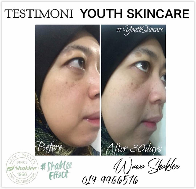 Testimoni Youth Skincare Shaklee, Youth Skincare, Youth Skincare Semulajadi