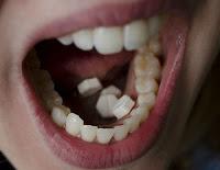 aturan pakai Cytotec di bawah lidah