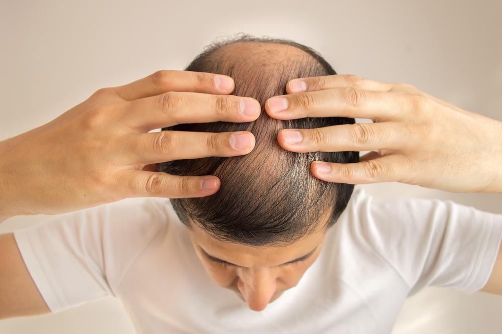 Waspadai Penyebab Sakit Kepala Bagian Atas Efeknya Berbahaya