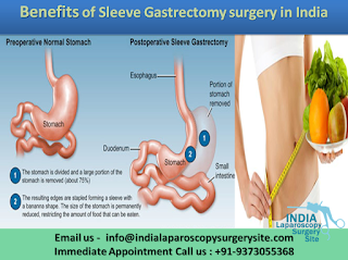 Benefits of Sleeve Gastrectomy surgery in India