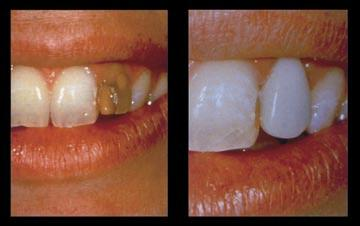 The Right Smile Center Dentist East Cobb How Much doVeneers Cost Per Tooth