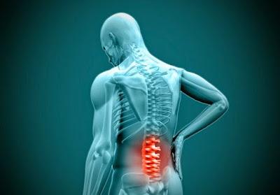 Pengobatan Sakit Atau Nyeri Punggung, Cara Menyembuhkan Sakit Atau Nyeri Punggung Secara Alami, Efektif Dan Cepat