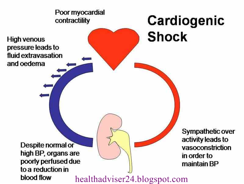 Dopamine - is the drug of first choice in cardiogenic shock | Health