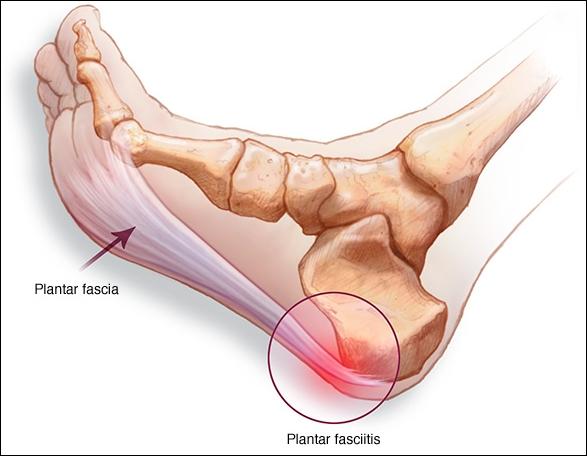Cara Menyembuhkan Sakit Tumit Dan Telapak Kaki
