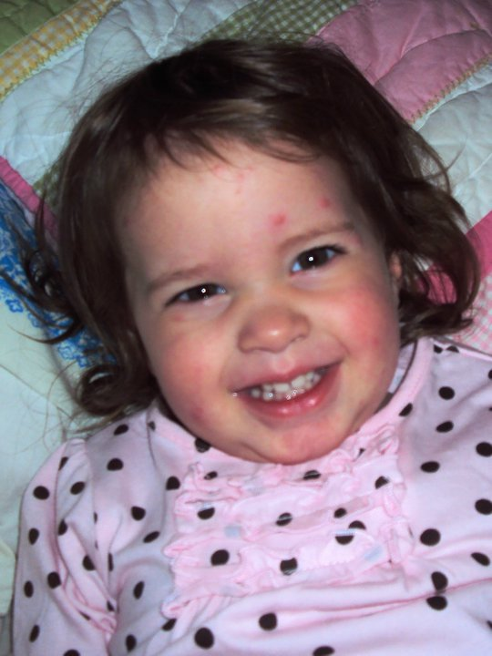 Fifth Disease Pictures In Adults