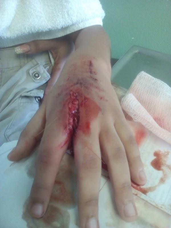 Que no quede fea doctor!!! Herida en mano