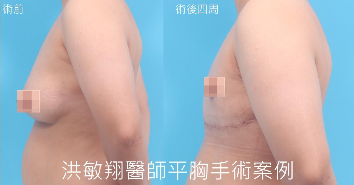 一字型平胸手術案例側面