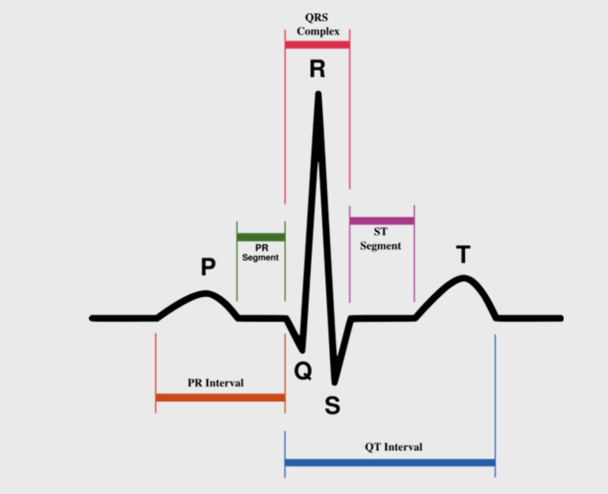 small resolution of the normal ecg shows three components