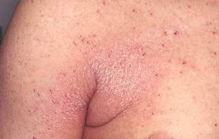 SCABIES: A COMMUNICABLE SKIN DISEASE