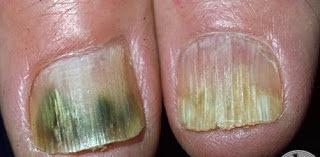 Remedios caseros para hongos en las uñas