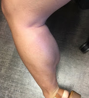 Cecilia Wynn Big Calf Muscle Update
