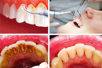 Inilah Cara Mudah  dan Alami Merontokkan Karang pada Gigi