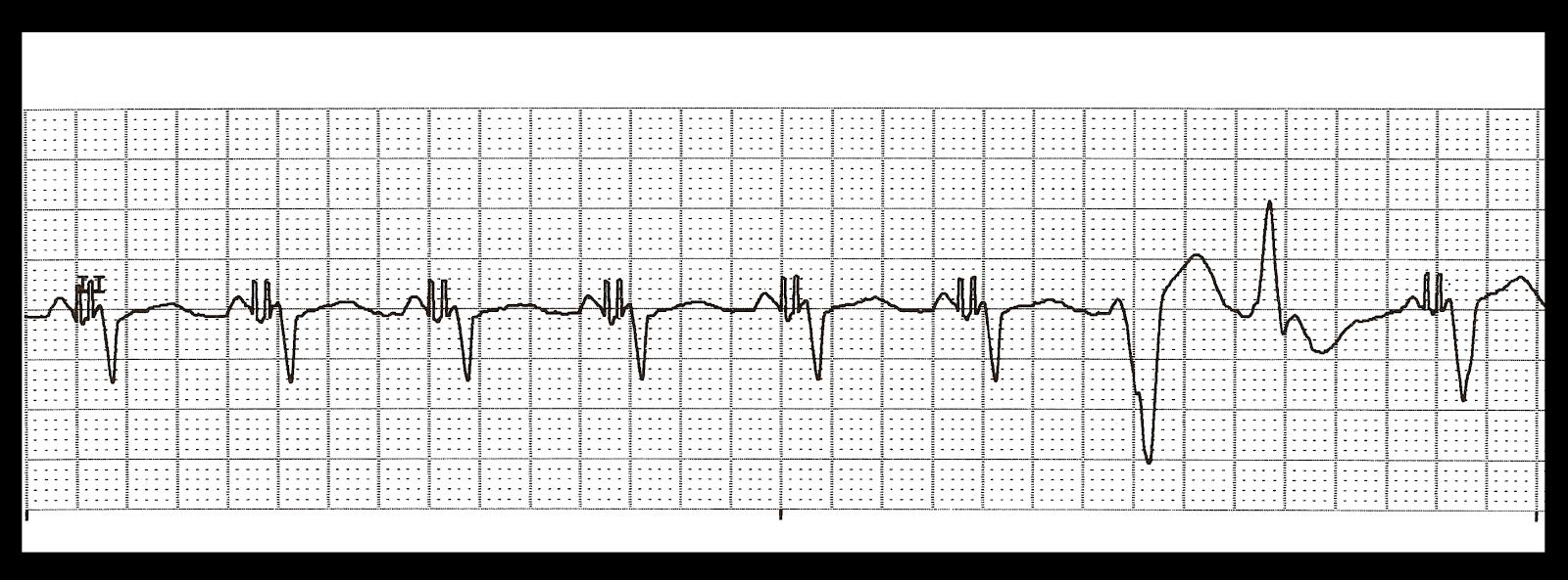 Float Nurse: Basic EKG Rhythm Test 20