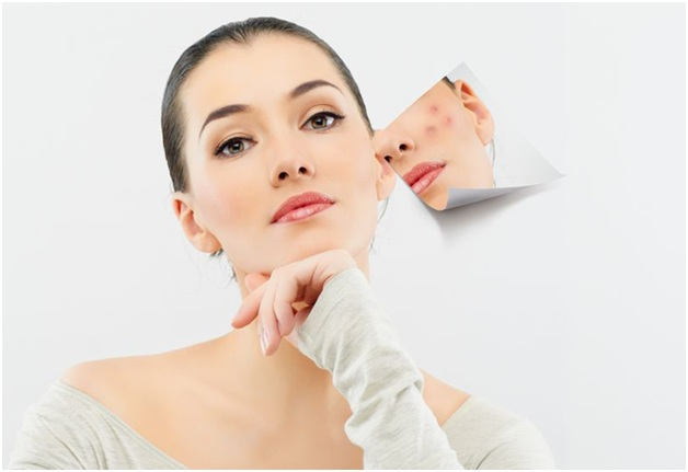 How Acne Treatment Can Help You Improve Your Face