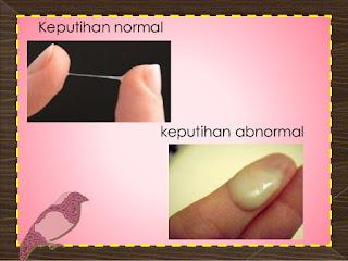 keputihan abnormal dan normal