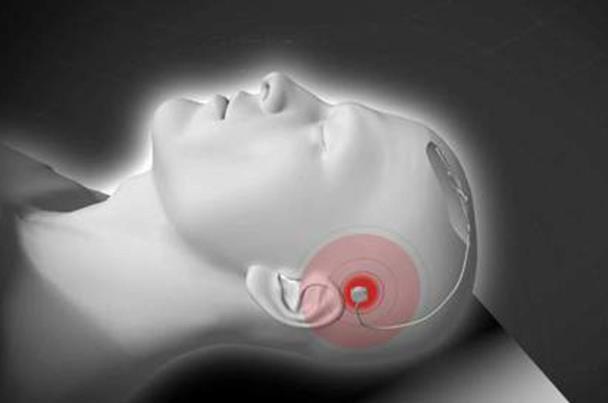 ابتكار جهاز فريد من نوعه لمعرفة مايدور بداخل المخ