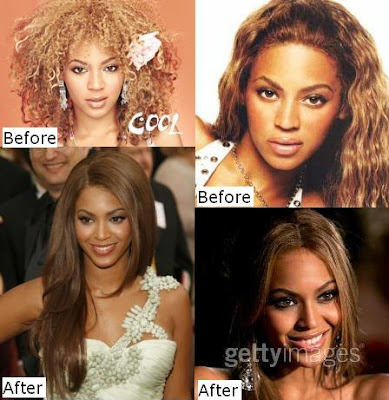 Beyonce Plastic Surgery Before And After Nose Job Botox