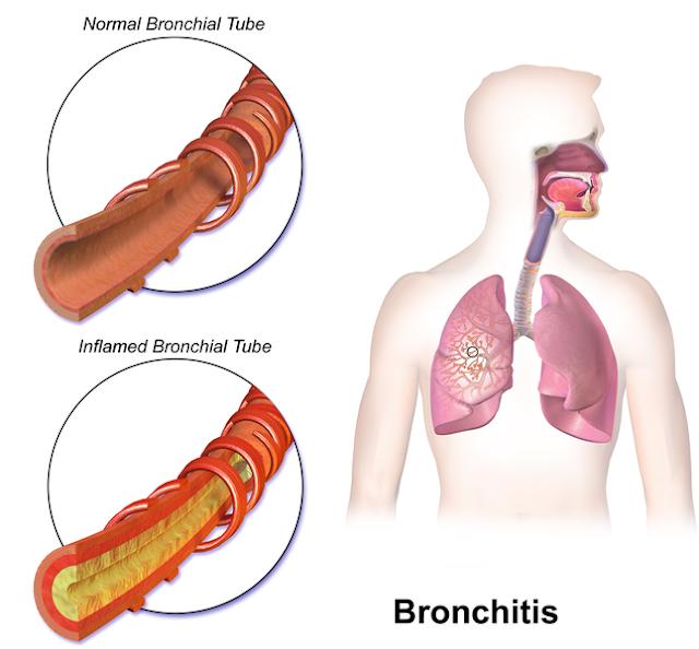 श्वसनी शोथ / श्वासनली शोथ [ Bronchitis ] की समस्या क्या है ? इसके बचने के लिए क्या - क्या किया जा सकता है ? What is the problem of bronchitis / bronchitis? What to do to avoid this - what can be done?