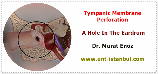 Myringoplasty Operation - Myringoplasty Video - Repair of Tympanic Membran Perforation - Transcanal (Transmeatal, Endomeatal) Myringoplasty - A Hole In The Eardrum - Myringoplasty Technique - Myringoplasty Indications - Myringoplasty Contraindications - Postoperative Patient Care For Myringoplasty Operation - Post-operative Instructions for Myringoplasty